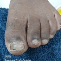 Manicure, Pedicure male and female, Acrylic fullset and waxing